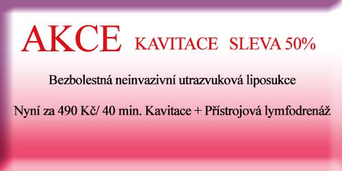 Kavitace