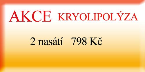 kryolipolýza